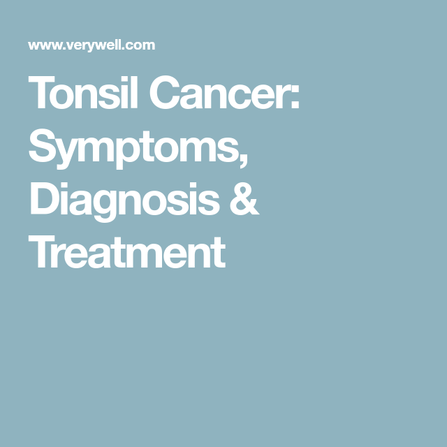 What You Need to Know About Tonsil Cancer   Dental   Thyroid