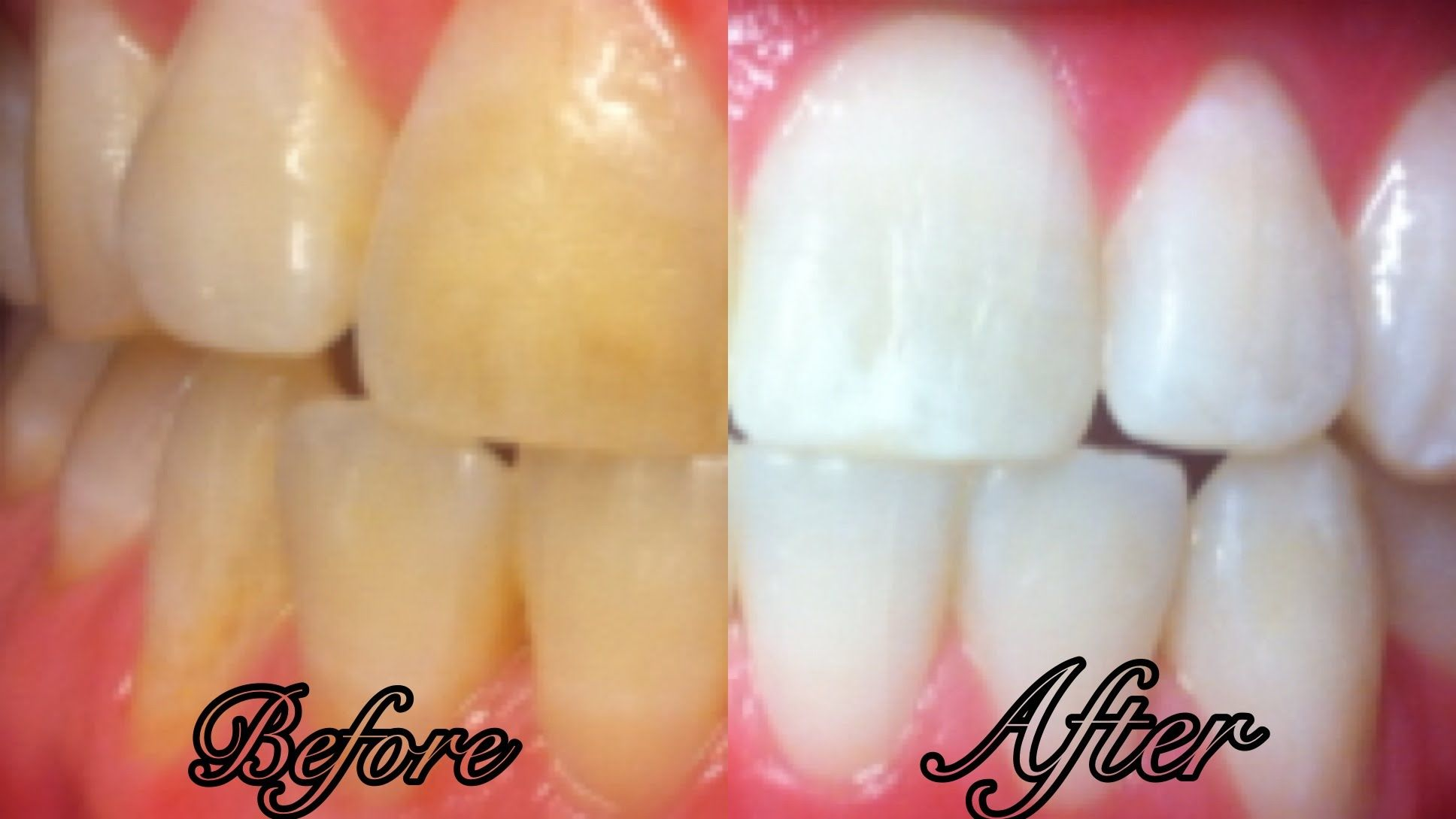how to whiten teeth at home in 3 minutes simple youtube