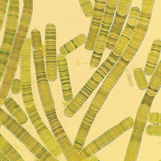Oscillatoria sp. #cyanobacteria #microscopy #microbiology ...