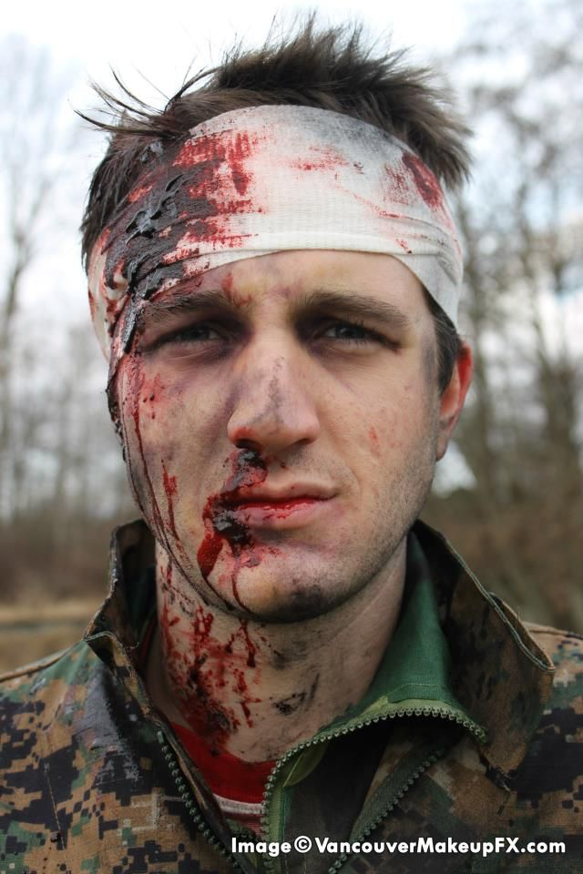 Wounded Soldier Head Trauma - Makeup FX by Dallas Harvey - Image copyright Vancouver Makeup Effects