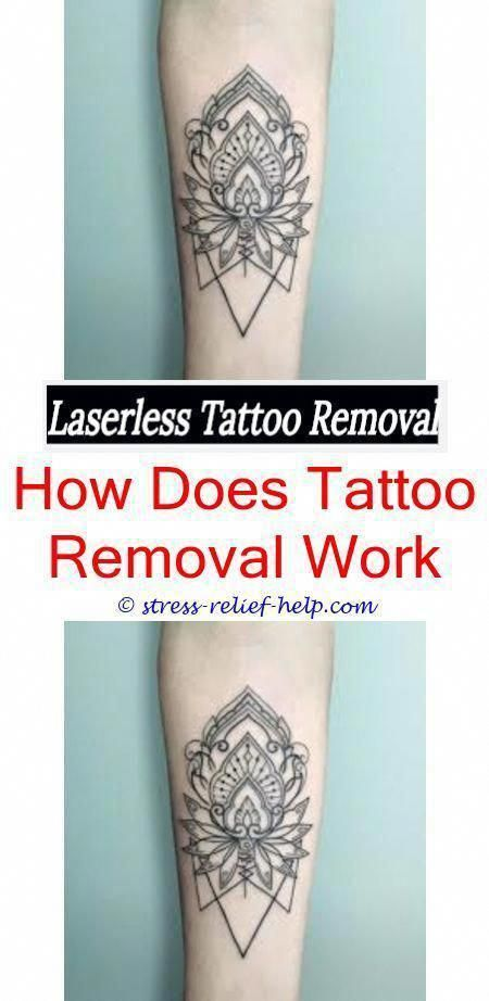What to do after laser tattoo removal.Tattoo removal ...