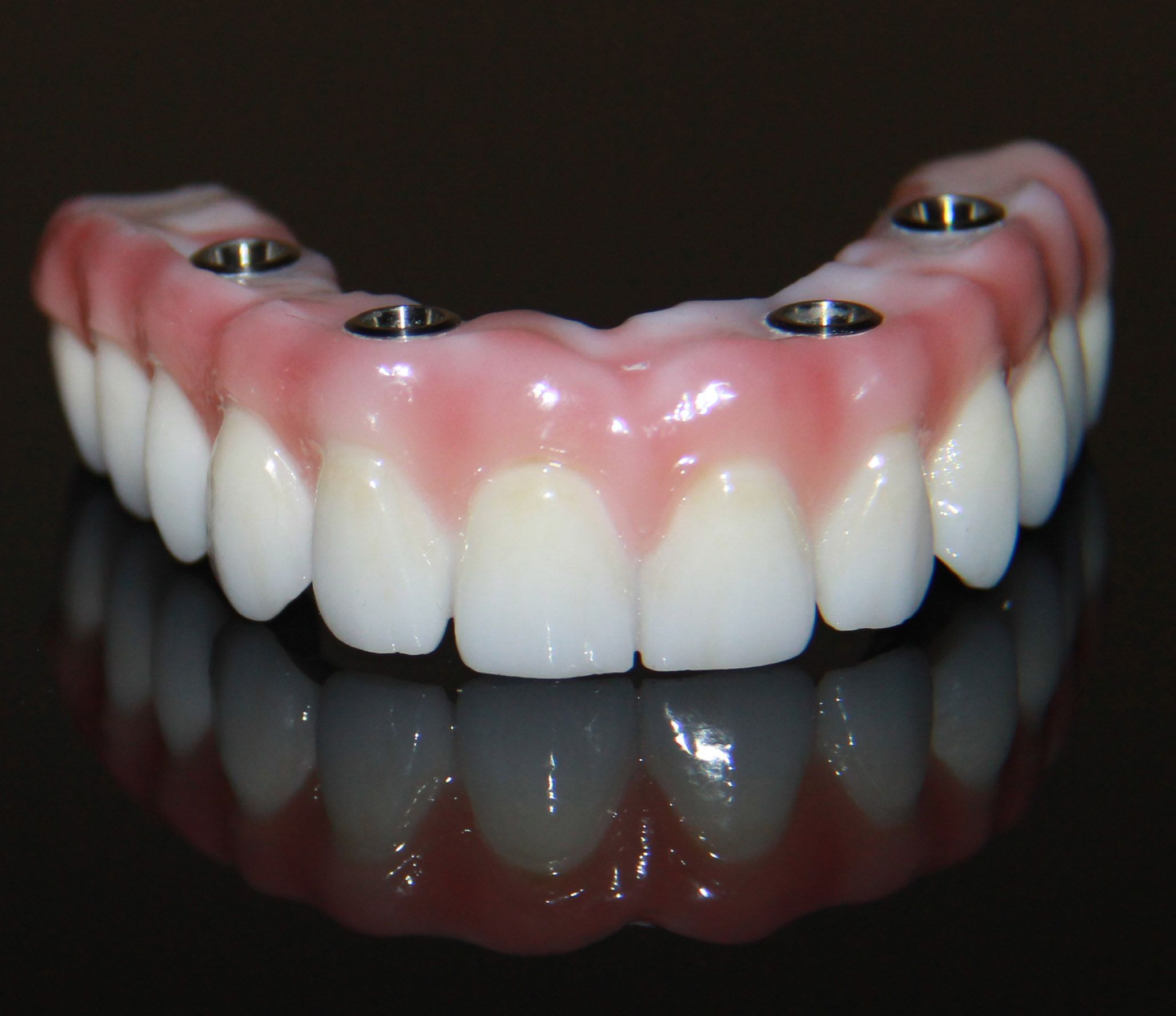 ZIRCONIA1 Denture implants, Dental implants, Tooth
