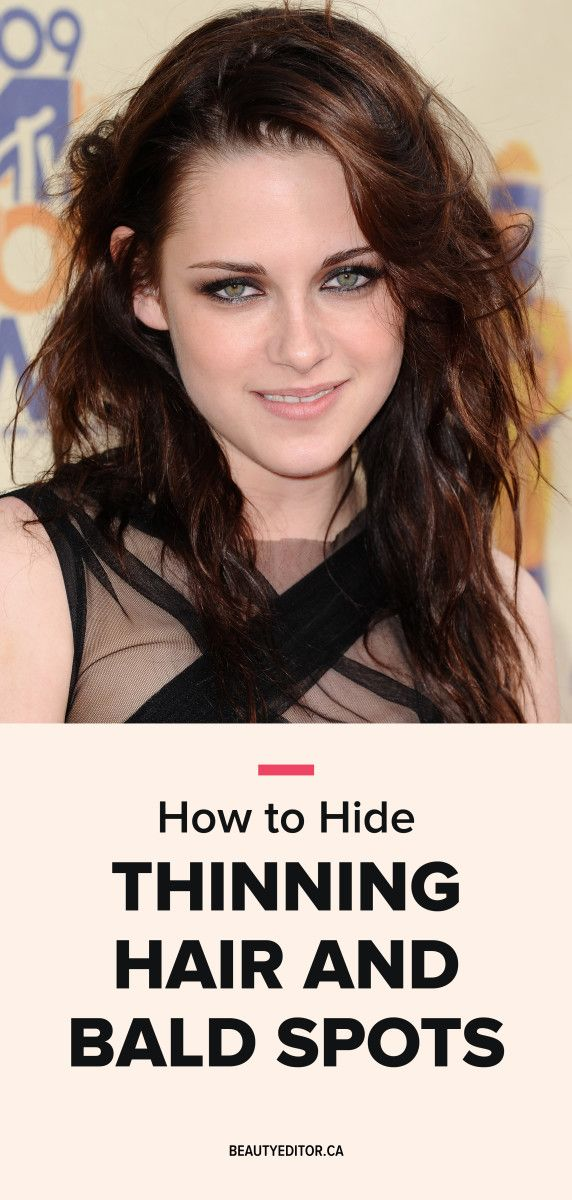 How To Hide Thinning Hair And Bald Spots Hair Color Styles