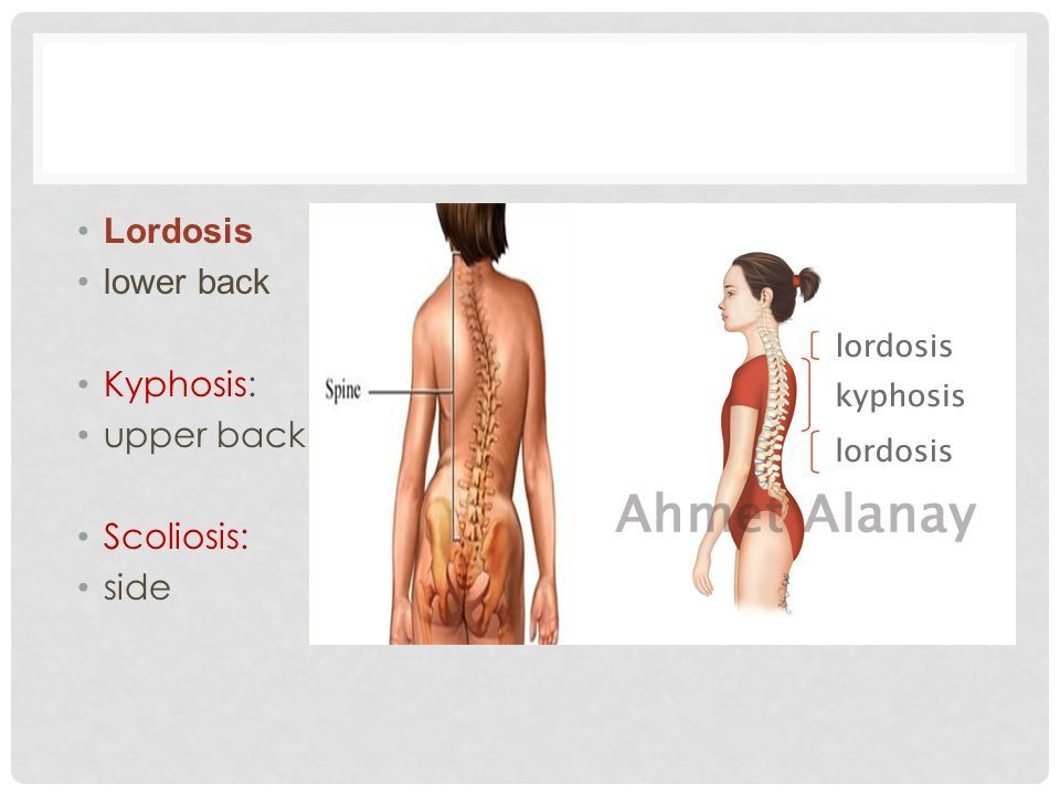 Image Result For Lordosis Kyphosis Scoliosis Posture Pinterest