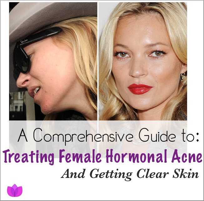 How To Naturally Treat Hormonal Imbalance In Females