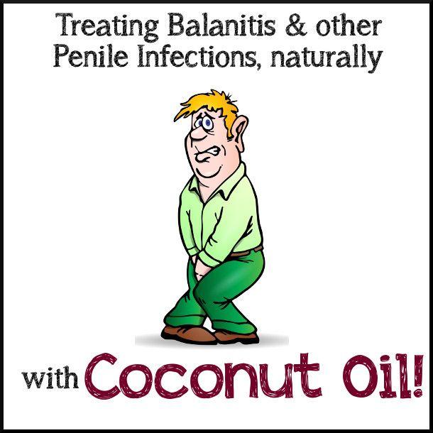 Natural Remedies For Balanitis