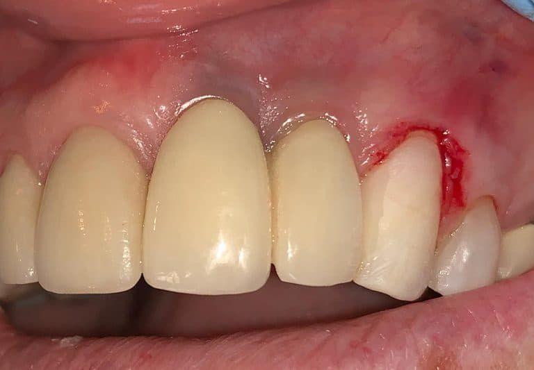 Zirconia Dental Implants Metal Free Biocompatible Safe Dental Implants Cosmetic Dentistry Cost Free Dental Implants