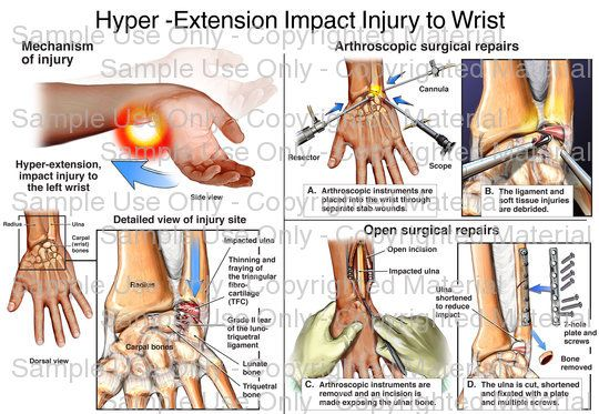 Loading: \'Hyper -Extension Impact Injury to Wrist\' - Please wait ...