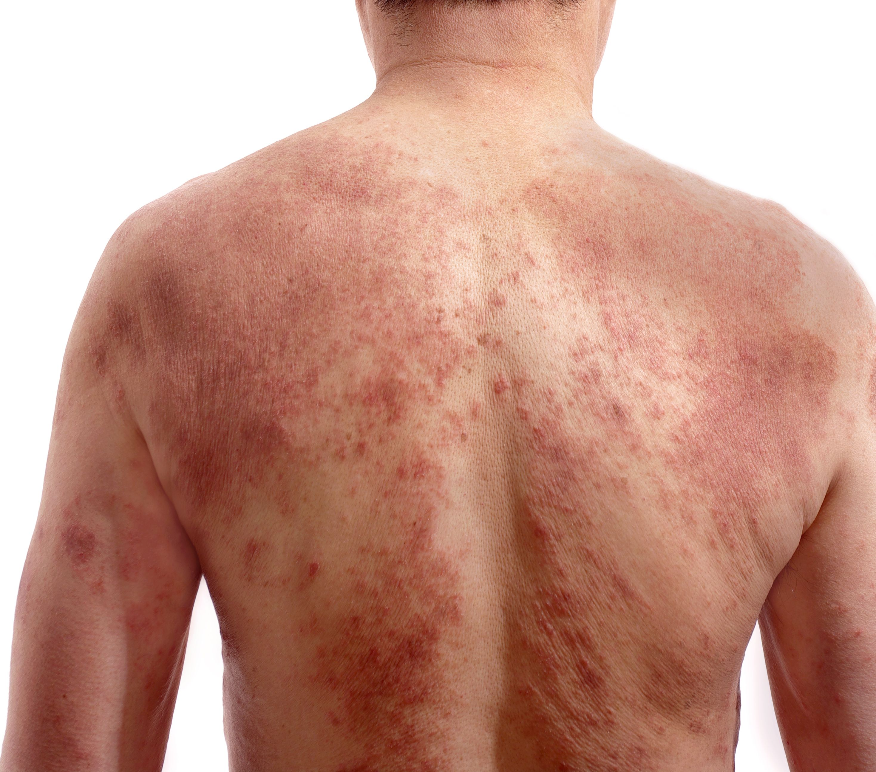 Who gets psoriasis? Anyone can get psoriasis, but it occurs more often in adults.…