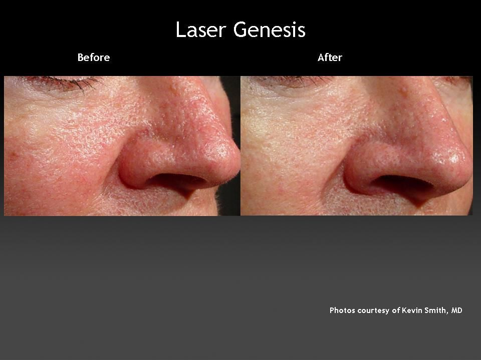 After Laser Genesis Pore Size Is Reduced As Is Redness And Visible Veins Laser Skin Facial Veins Redness