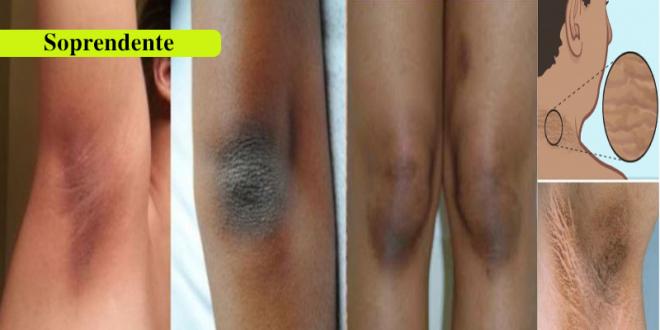Elimina Las Manchas Negra En Solo 15 Minutos Con Este Remedio Casero Natural Manchas Negras Como Blanquear Las Axilas Y Quitar Manchas De Axilas