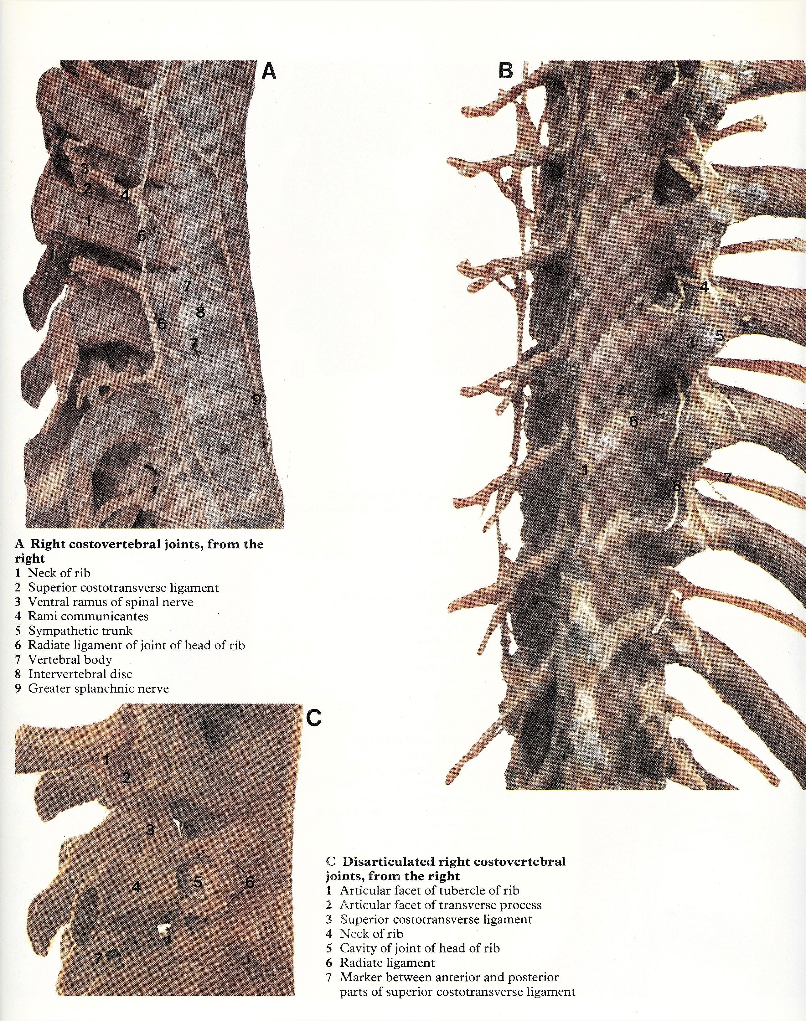 Pin By Bengt Sandberg On Part 4 Of 6 Thorax Atlas Of Human