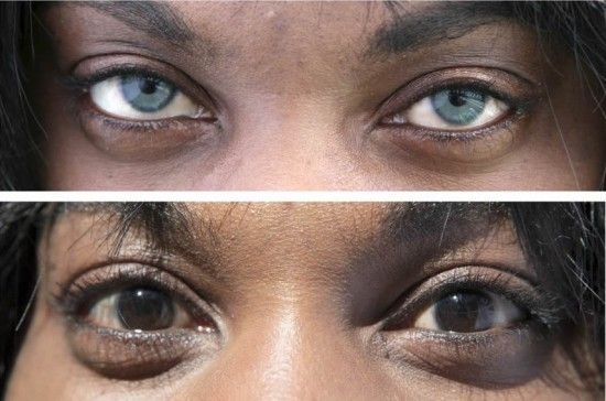 Controversial Artificial Iris Implant Surgery to Permanently ...
