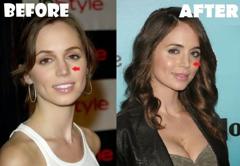 eliza dushku nose job and cheek implants i don t see it
