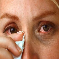 Simple Home Remedies For Itchy Eyes   I'm gonna try a couple