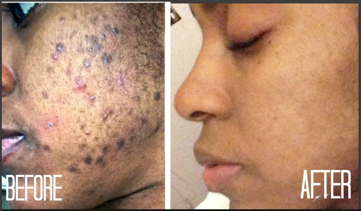 c8b0923aa6c57adf3c1986bbd377ce9e - How To Get Rid Of Acne Scars On Brown Skin