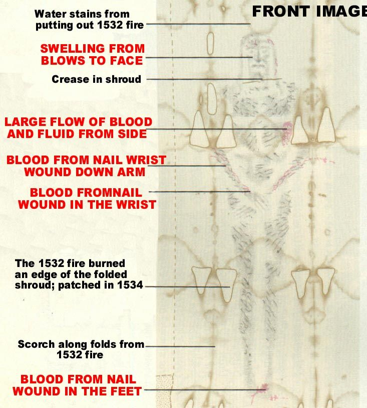 Front image wound description of the Shroud of Turin ...