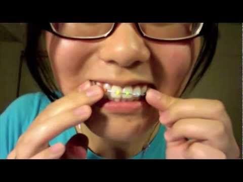 Make fake braces fake braces costumes and tutorials make fake braces diy solutioingenieria Image collections