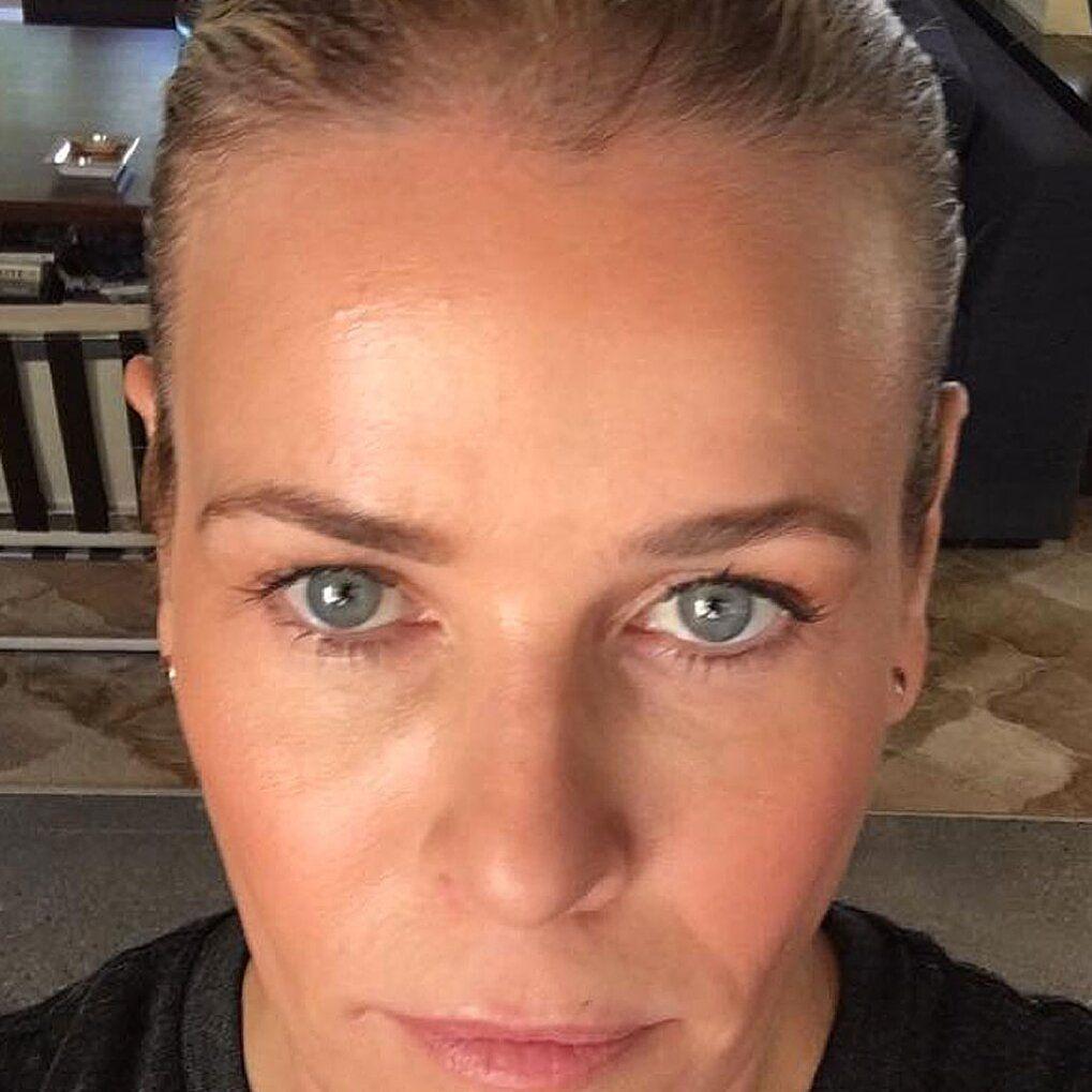 Chelsea Handler BeforeAndAfter ProFractional Laser in