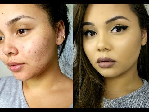 How To Cover Acne Acne Scarring Flawless Foundation Routine Https Www Avon Com S Sho Flawless Foundation Routine Acne Makeup Tutorial Foundation Routine