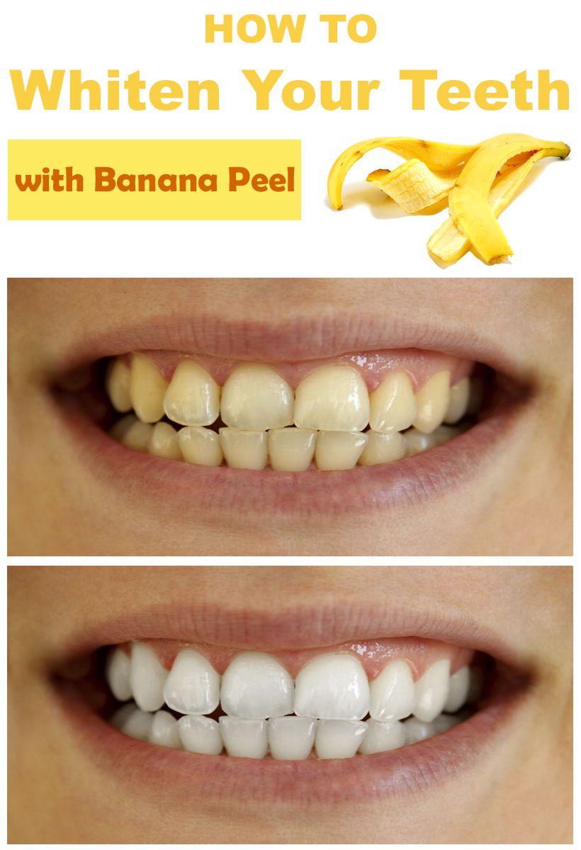 How To Whiten Your Teeth With Banana Peel Diy Pinterest