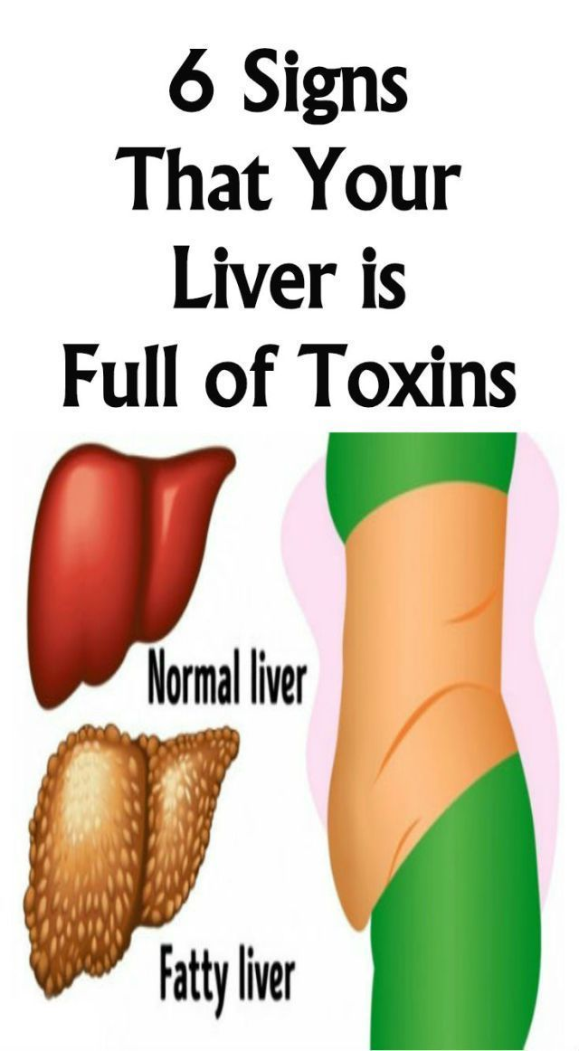 Here Are 6 Signs That Your Liver Is Full Of Toxins!!!  #wieghtloss  #fitness