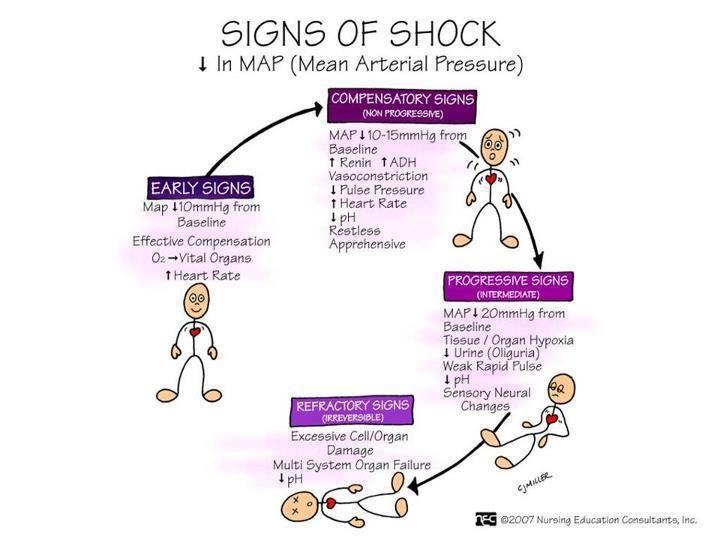 Signs Of Shock Mean Arterial Pressure (MAP Shock) | Nursing ... on intracranial pressure, blood pressure, segmental arterial pressure, mean blood pressure, pulse pressure, pulmonary arterial pressure, korotkoff sounds, mean bp, mean pulse pressure chart, heart rate, arterial line pressure, human body temperature,