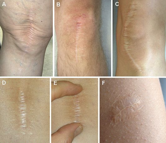 Image Result For Orthopedic Surgery Scars  Mean Machine -9463