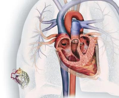 Pin De Cristina En Salud Anatomia Sistema Cardio Respiratorio Arterias Coronarias Cardiopatias Enfermedades