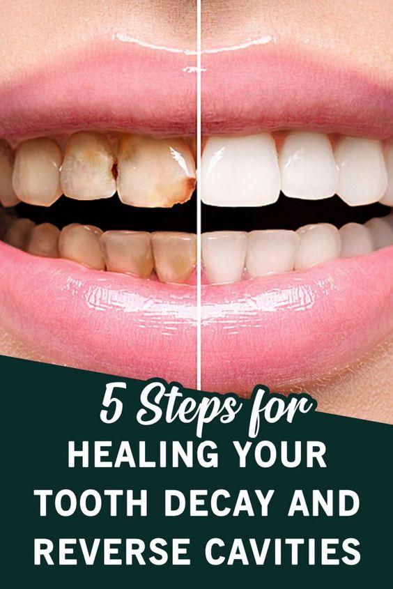 Enchanted Tooth Decay Repair teethwhiteningbyamanda