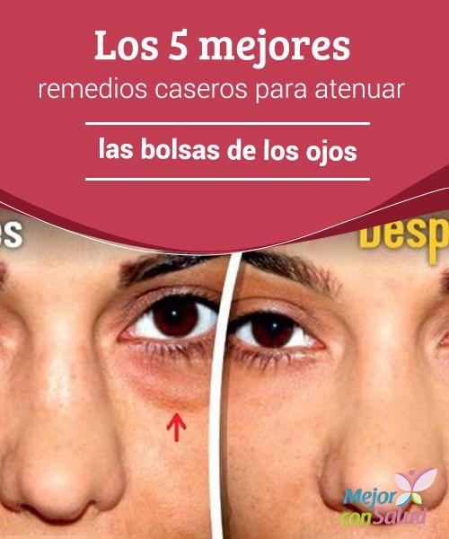 remedios caseros para las bolsas de los ojos
