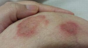 Breast cancer rash photos
