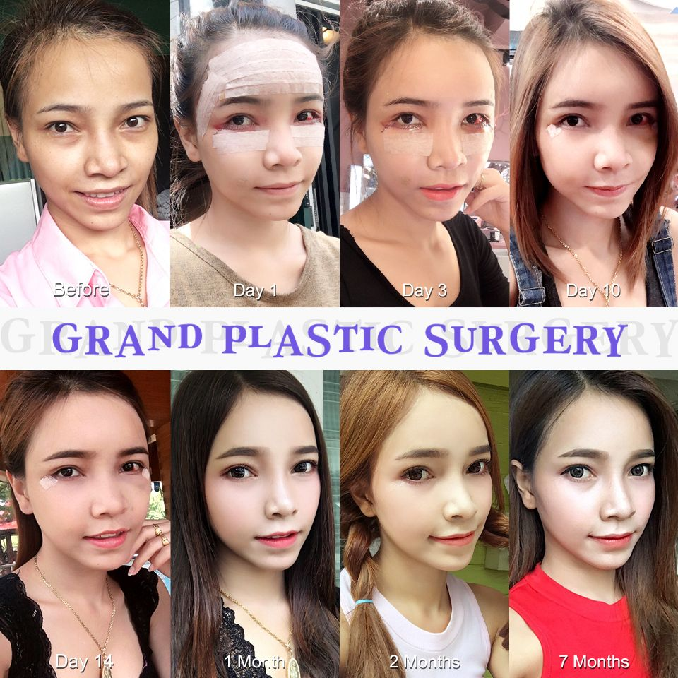 Free consultation : Grand Plastic Surgery Tel: (+82) 70-7119-1580 Email: grandps.en@gmail.com Facebook: http://facebook.com/grandplasticsurgery Webstie: ...