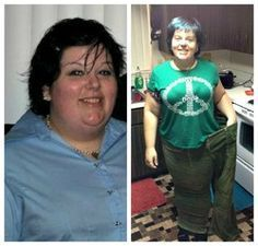 150 pounds lost with PCOS.  Slow and Steady Wins the Race.  Read her weight loss story...