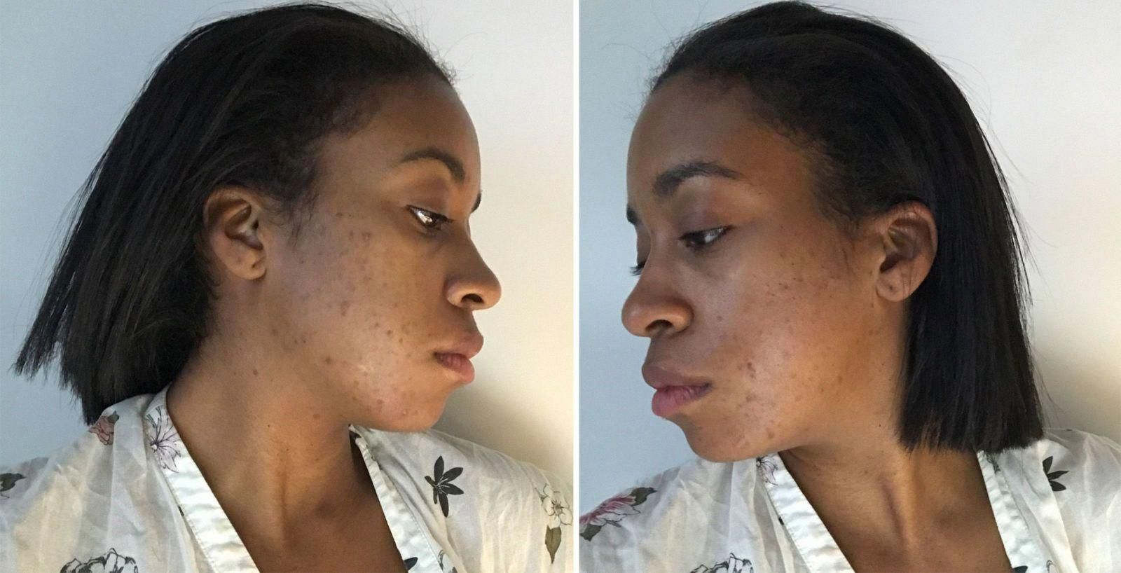 Daily Natural Skin Care Routine Hormonalacne Diy Acne Treatment Back Acne Treatment Acne Treatment