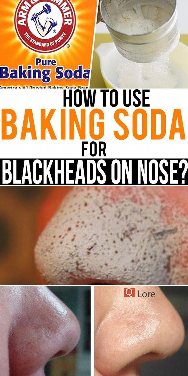 Almost of all you might be annoyed a little bit with blackheads on nose You dont even want to talk about them But theyre there nestled comfortably inside the poresbakings...