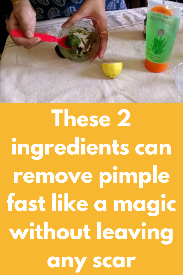 These 2 ingredients can remove pimple fast like a magic without