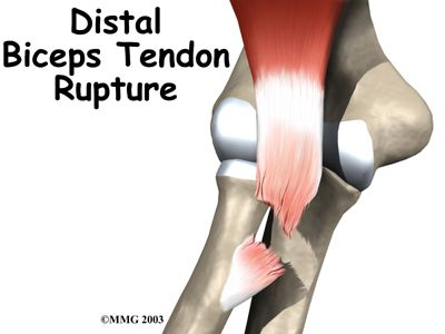 Distal biceps rupture typically occurs at the radial tuberosity.