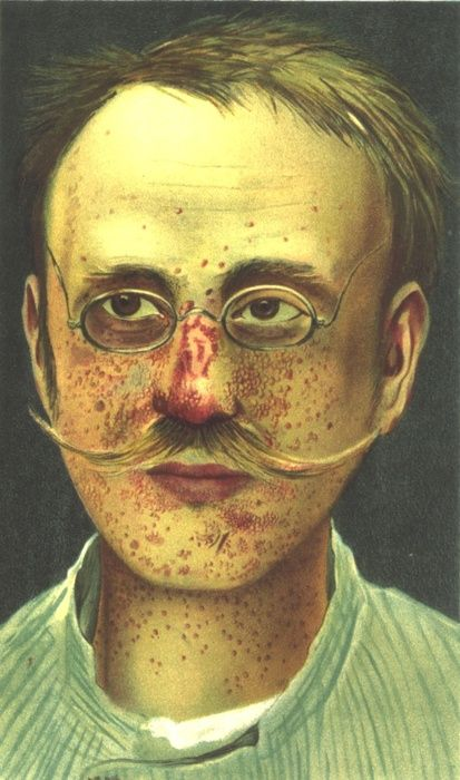 Tuberous Sclerosis        Case from German physician Richard Kothe, 1903        Tuberous sclerosis is not to be confused with tuberculosis. It's an autosomal dominant, multi-system disorder, but almost 2/3 of cases are sporadic mutations. The periungual fibromas illustrated here are one of the key diagnostic criteria for the Tuberous Sclerosis Complex.        Illustration from Wikimedia Commons