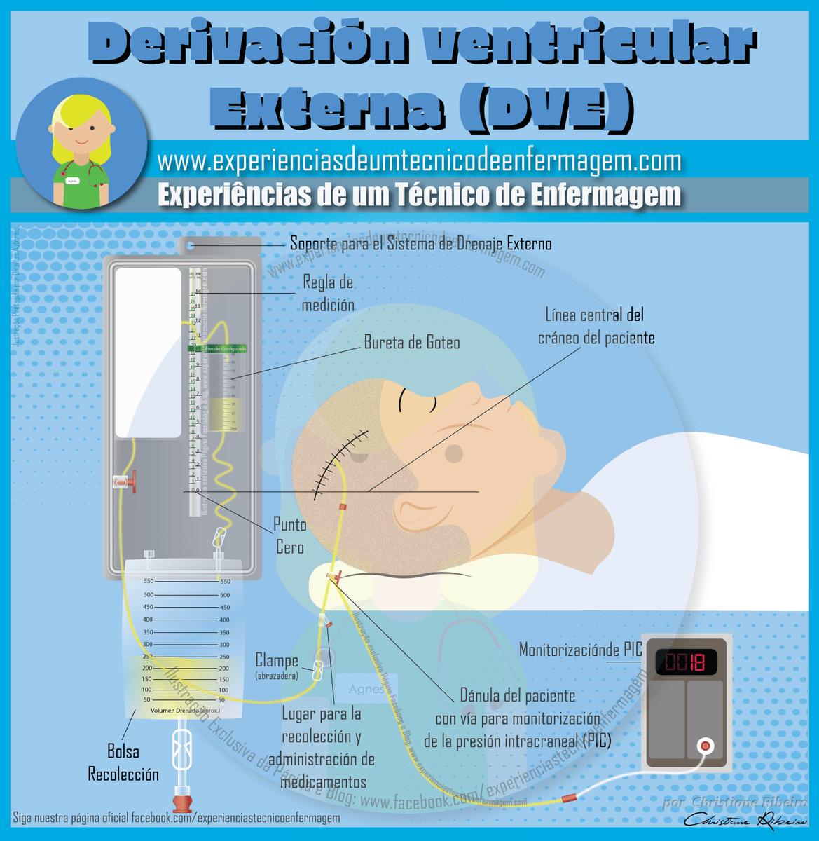 Asistente de radiología para hipertensión intracraneal