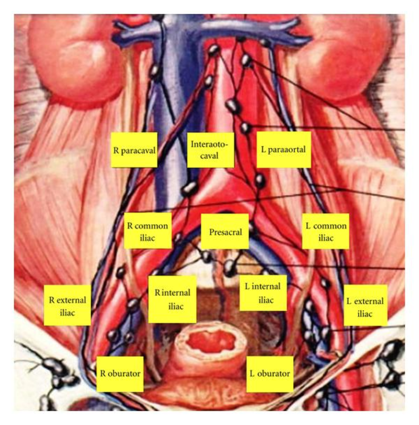 Pelvis lymph node and organ anatomical diagram - www.anatomynote.com ...
