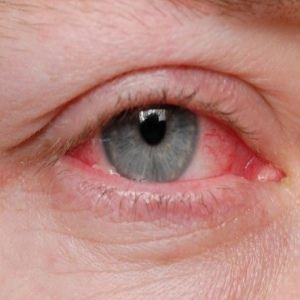 Natural Ways To Treat Allergic Conjunctivitis