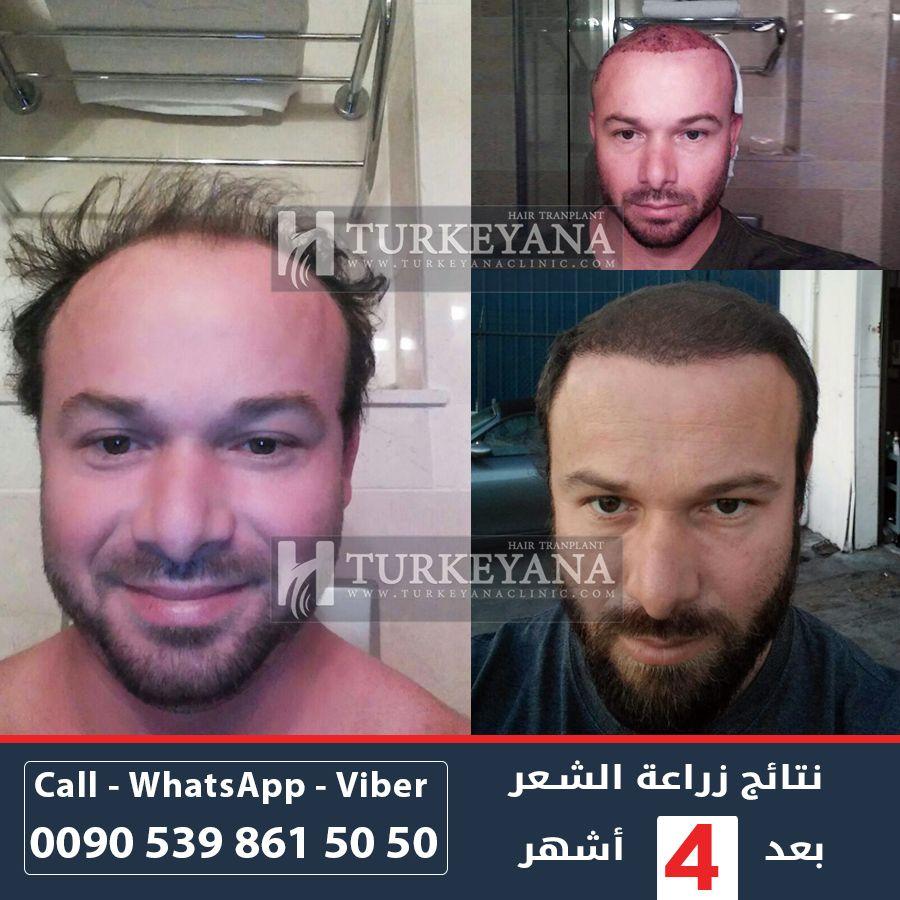 بعد 4 أشهر من زراعة الشعر لدى تركيانا كلينيك الفريق الطبي يرحب بالإجابة على جميع استفساراتكم بالإضافة الى حصولك على معاينة مجانية عبر الإتصال بالرقم التالي