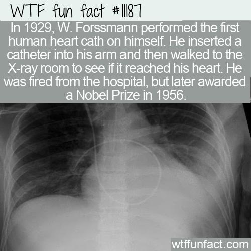 WTF Fun Fact - First Human Heart Cath