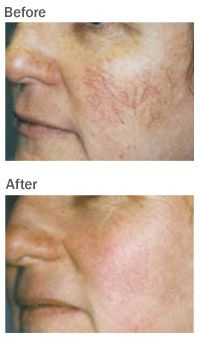 thread vein removal face