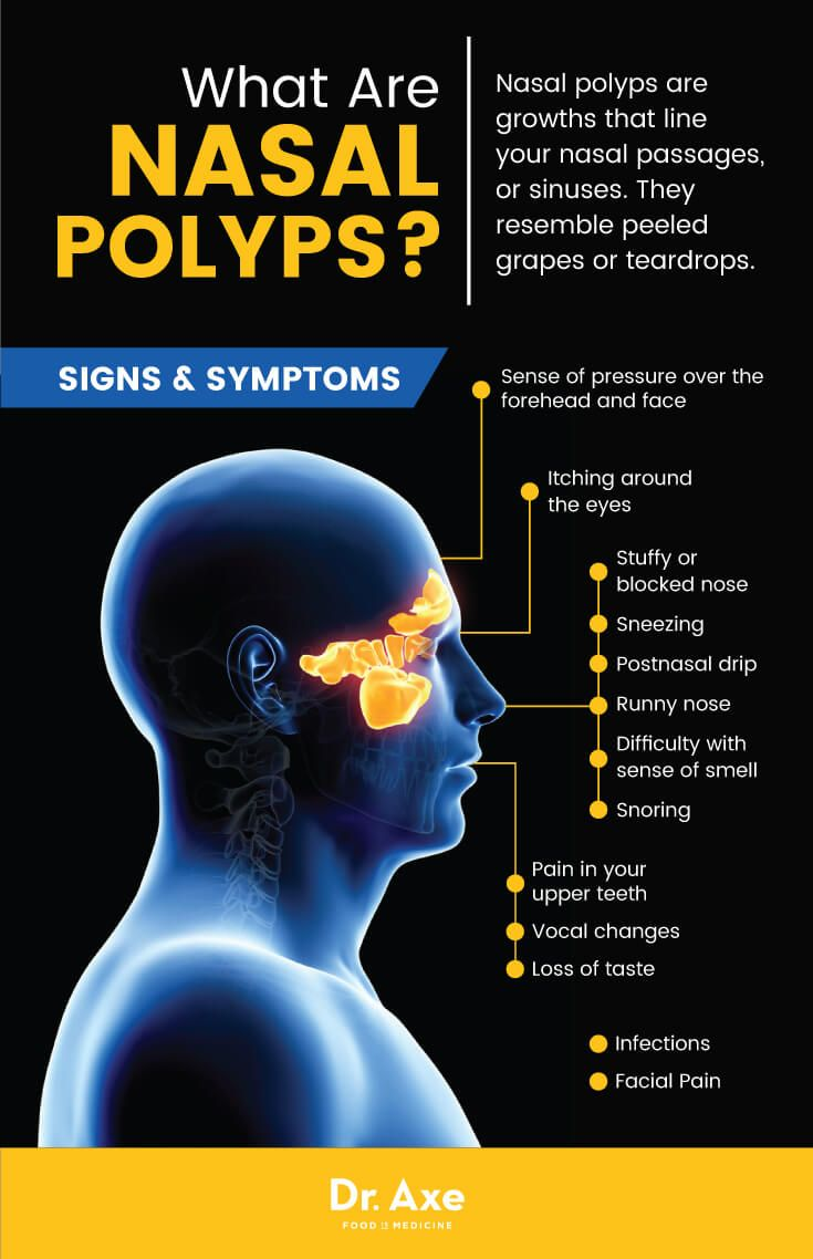 How to effectively deal with polyps