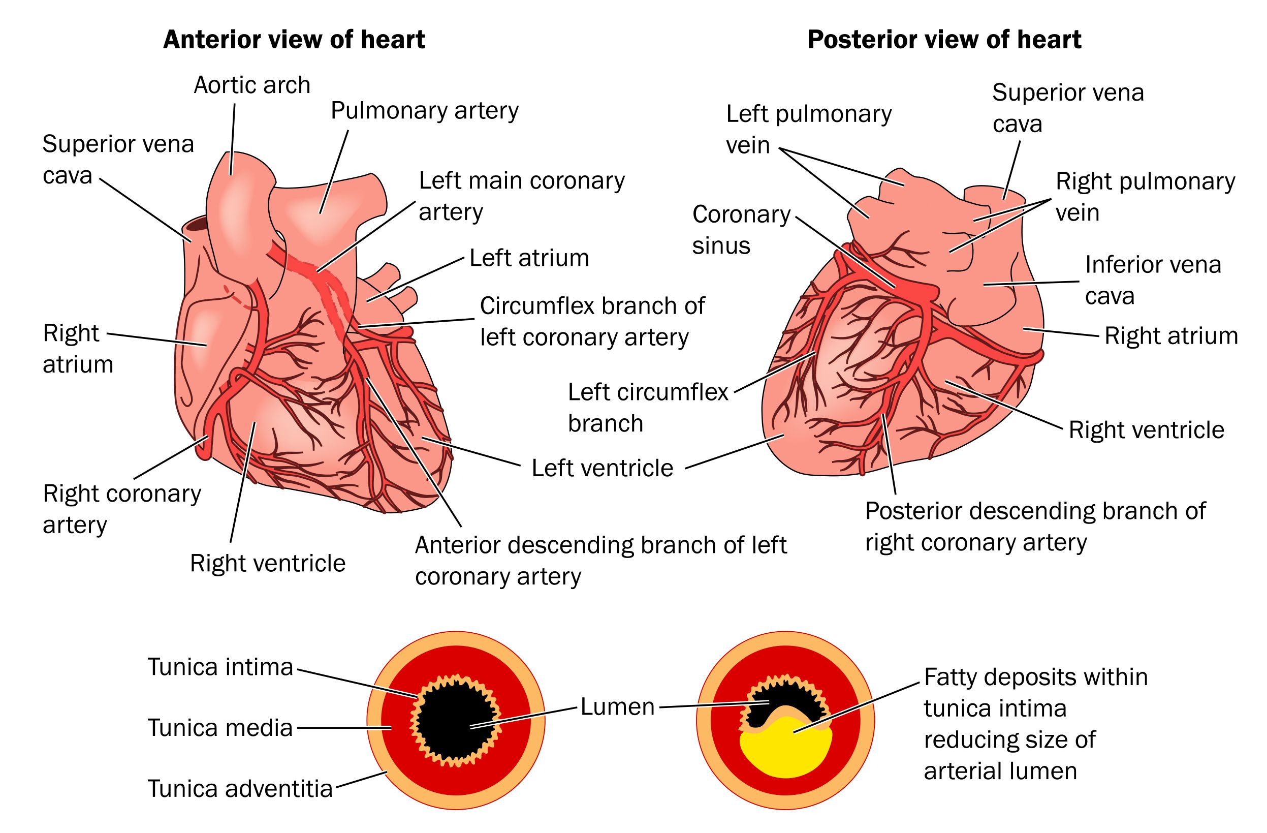 What Is Coronary Disease - http://www.medigoo.com/component/k2 ...