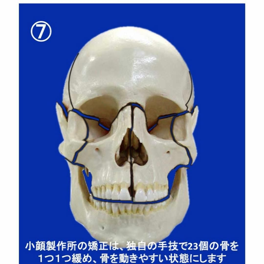 30ccb11b414 Why is Small Face Therapys bone correction popular  Slide the picture and  see the Why
