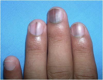 What Are The Effects Of Nutrient Deficiencies On Nails And How To Rectify Them Vitamin Deficiency