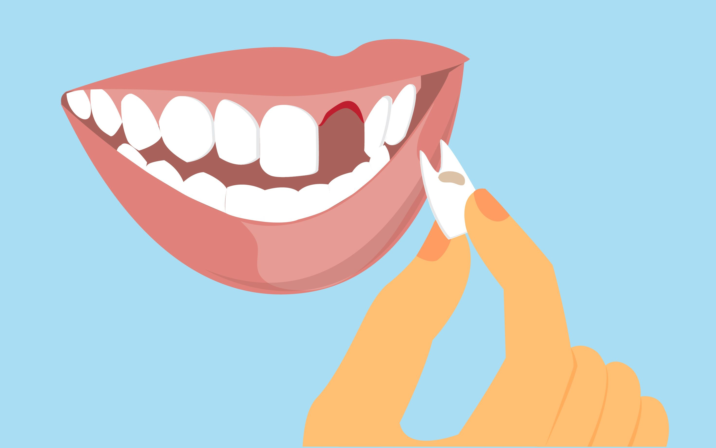 How to pull out a loose tooth loose tooth loose teeth